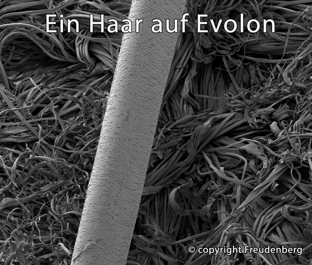 TAURO 28909 Flex 160 x 200 cm MatratzenBezug gegen Milben | AntiAllergie | höhenverstellbar von 14-20cm | Matratzenbezug bei Hausstauballergie Jetzt neu: TÜV zertifiziert!